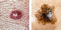 Photo comparing normal and melanoma moles showing asymmetry
