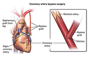 Illustration of the heart and the part of the coronary artery where bypass is done