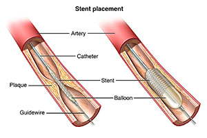 Part of an artery showing plaque build up. A catheter and stent are in place.